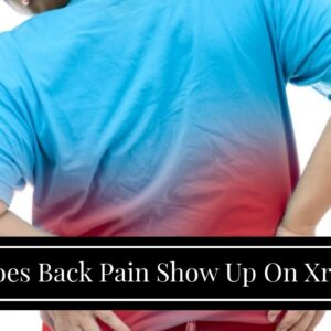 Does Back Pain Show Up On Xray